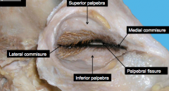 Superior palpebra, medial commisure, palpebral fissure, inferior palpebra, lateral commisure.