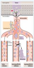 - Intravasation   →durchbrechen vonExtrazellulärmatrix und Basalmembran (Metalloproteinasen,aktive amöboide Bewegungen)   → aktives Eindringen in die Metastasierungswege (Lymph- und Blutbahnen, Körperhöhlen)      - Tumorzellve...
