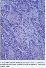 - ausgehend von Plattenepithel (v.a. Haut, Mund- und Ösophagusschleimhaut, Vagina) oder Plattenepithelmetaplasien (Uterus-, Zervix-, Bronchial-, Urothel- oder Gallenblasenschleimhaut)   - Tumorzellen sind groß, polygonal oder spindelförmig und ...