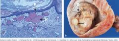 - Reife (benigne) Teratome  → ausdifferenziertes Gewebe aller 3 Keimblätter (z.B. Zähne, Haare, Knochen, Knorpel, Bronchial- oder Gastrointestinalschleimhaut  - Unreife (maligne) Teratome  → wenig differenzierte Gewebe.