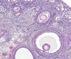 Mitä isot mollukat vois olla? Erivaiheessa olevia soluja.