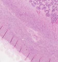 Rauhasia, kaks lihaskerrosta joide välis verisuonikerros ja ulkokerros