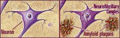 1. Plaques: structures formed from damaged axon+dendrites 2. Tangles: structures formed from degeneration of neurons