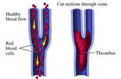 Venous Thrombosis   Coagulation has major role, formation of major role   Arterial Thrombosis   Platelet aggregation has more important role Coagulation also involved   Where the thrombi forms influences drug use