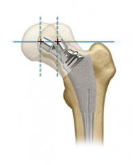 high offset stems are a tool to assist in increasing tension and improving stability in the appropriate patient. A disadvantage of higher offset stems may be lateral prominence and trochanteric bursitis in thin patients, potential benefits of a hi...
