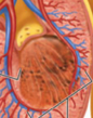 Yellow part is the renal papilla