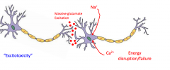 The motor neurons become hyperexcitable at the synapse and more neurotransmitters send a massive amoutn of glutamate out which is an excitatory NT and so there is a massive influence of sodium to generate an increased amount of action potentials b...