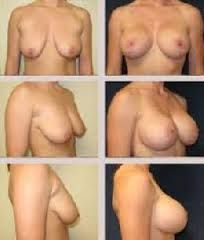 if you need it just contact Benn. they include; Breast enlargement creams