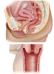 Fibromuscular tube  Distensible wall -Mucosa  -Muscularis -Adventitia Fornix, rugae, vaginal orifice, vestibular glands, hymen