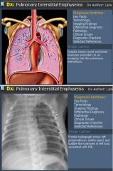 Pulmonary interstitial emphysema