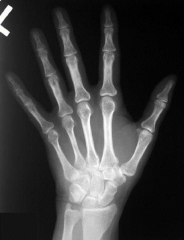 This a radiograph of which hand?