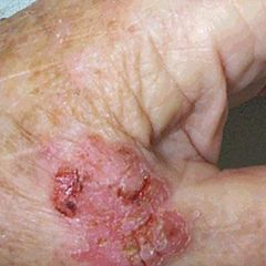 SCC carcinoma in situ; well defined psoriatic like plaque commonly on legs or trunk in elderly women