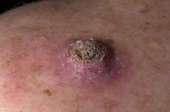 Mimic of SCC - assume SCC until proven otherwise. -Volcano like with central keratin plug -Excise 4-6 mm margin