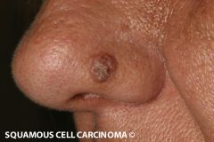 Ugly/untidy looking; may be ulcerated or eruptions -Found areas more sun exposure