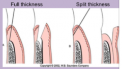 All soft tissue +periosteum is reflected to expose underlying bone