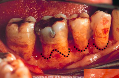 normal gingival and osseous marginal contour; commonly parabolic in form with the apex of the parabola located at mid buccal/lingual surfaces and interproximal tissue in the most coronal.