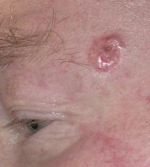 Ulcerated with pearly border; telangectasia; middle third of face. -Don't metastasise