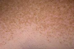 Flat focal areas of overproduction of melanin (no increase in melanocyte number) from UV exposure in sensitive skin.
