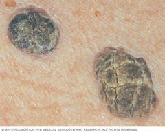 Benign keratinocyte tumours -Stuck on appearance; warty irregular surface; plugged follicles; most commonly on trunk but can occur on face & limbs (not palms or soles); often multiple; increase with age.