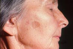 Flattish brown marks on back of hands, forearms and face; reflect sun exposure