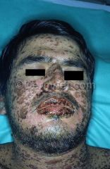 Somewhere between TEN and erythema multiform May be sue to infection or adverse drug reaction See target lesions and skin peeling (less than in TENs); mucosal involvement Sore mouth and eyes