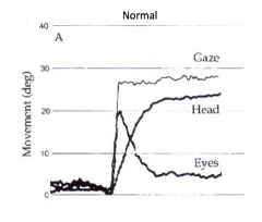 Counter-rotation of the eyes in response to head rotation      1) Move eyes as far then move head to gaze and then move eyes back to where need to fix them on