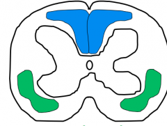 Dorsal-Medial Leminiscal (Blue)      Anterolateral spinothalamic (Green)