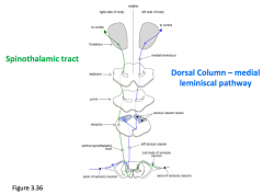 Spinothalamic crosses right at the spinal cord      Dorsal column crosses over at the medula