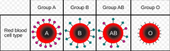 Simple dominance: •one allele is dominant over the other Codominanceand multiple alleles: •Codominance: both alleles are expressed at the same time (AB) •Multiple alleles: more than 2 alleles (A, B, O) Incomplete dominance: •heterozygou...