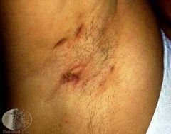 Effects apocrine bearing areas (axillae, groin, perineum and perianal areas) -Rupture of follicle and dispersion of contents in to surrounding dermis - inflam. -Sterile abscess formation and sinus tracts with excesive scarring -More common in...
