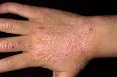 Chronic eczema - exaggeration of skin markings