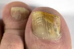 Caused by: -dermatophytes-mainly Trichophyton rubrum (accounts for 90% of cases yeasts) - Yeasts -Candida - non-dermatophyte moulds   -Confirm diagnosis via clippings/scraping then treat with oral terbinafine or itraconazole