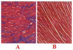 Define labels A and B on the histology.