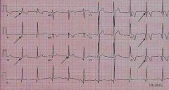 What do the arrows show on this ECG?