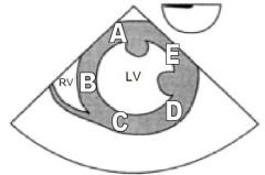 The diagram below is of a transgastric short axis view obtained during a transoesophageal echocardiography examination. Which letter corresponds to the area supplied by the right coronary artery?
