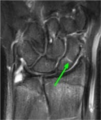 Tenderness with palpation of the anatomic snuffbox should raise suspicion of a scaphoid fx.  xray does NOT show any findings, but scaphoid fx are often not initially visualized on plain xrays. Appropriate tx for any pt w/snuffbox tenderness entail...