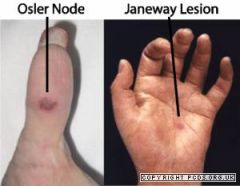 Fatal if untreated   Lesions like leuco vasc but often pustular with blistering and necrosis +/- pyrexia Aetiology: gonococcus, sub-acute bacterial endocarditis   See Janeway spots (on palms) and Osler nodes on tips of fingers and toes in ...