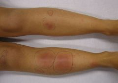 self-limiting panniculitis (inflammation of the fat) with painful red raised or indurated lesions most commonly on the lower legs in young adults.    F>M. Assos with pill, penicillin, strep/mycobac, sarcoidosis, brucellosis, lymphoma, ...