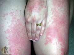 Affects 10-20% of population (heat rash) - looks different in different people Itching and erythema hours to days after sun exposure - may be raised with individual lesions like urticaria or large red plaques   Can last several days Most com...