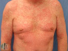 Most common cutaneous drug reaction - red, macular/papular. sometimes itchy, minimal scale Starts 4-21 days after taking medication No severe systemic involvement; no blisters; no mucosal involvement; no target lesions of erythema multiforme