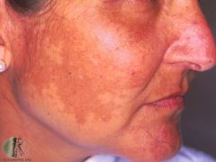 Brown/grey patches on cheeks and forehead commonly seen in pregnancy due to increased melanin hyperpigmentation Can also occur with COCP Sunblocks, azelaic acid and topical retinoids may help