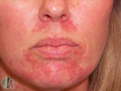 Papules, pustules and erythema +/- some scaling around the mouth Most common in young women. Commonly precipitated by topical use of steroids on the face Gradually reduce strength of steroids or treat with systemic tetracyclines
