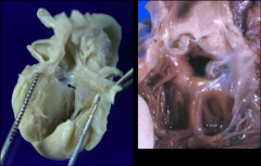 *Left: Arrow points to membranous part of IV septum (derives from what? bulbus!)  *Right: Paramembranous VSD; i.e. a defect where the membranous septum is supposed to be.