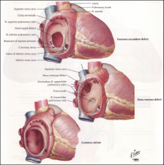 *These are named by the embryological origin of the defect (like sinus venosus defect, etc.).