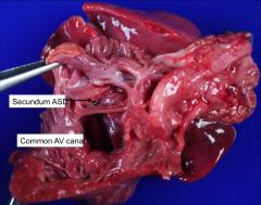 AV communis from a T21 case. Autopsy specimen.