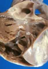 *Normal anatomy of the right ventricular outflow tract (RVOT): -pv = pulmonary valve -pb = parietal band -sb = septal band  *Must be understood to understand tetralogy of Fallot.