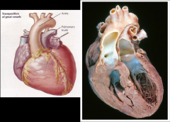 Transposition of great arteries