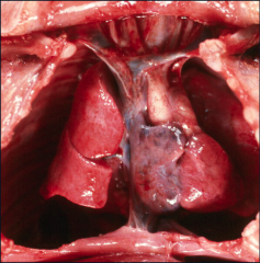 *Heart with Thymus removed. *Note innominate (brachiocephalic) vein. This means there is NOT a persistent left Vena Cava.