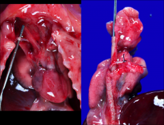 *ABERRANT origin of the right subclavian artery. *Left: Probe is under an ARSA. *Right: ARSA is retroesophageal.