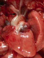 *Common origin of the carotid arteries (COCA), a frequent variant (no clinical significance).